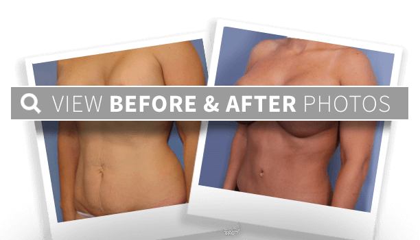 an example of our before and after results
