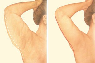 arm-lift-back-arm-incision