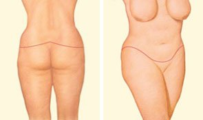 body-lift-closing-incision