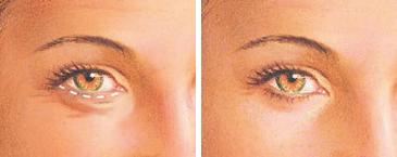 eyelid-surgery-lower-eyelid-incision