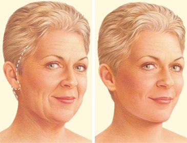 facelift-surgery-traditional-incision