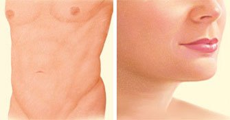 liposuction-after-stomach-breasts-chin
