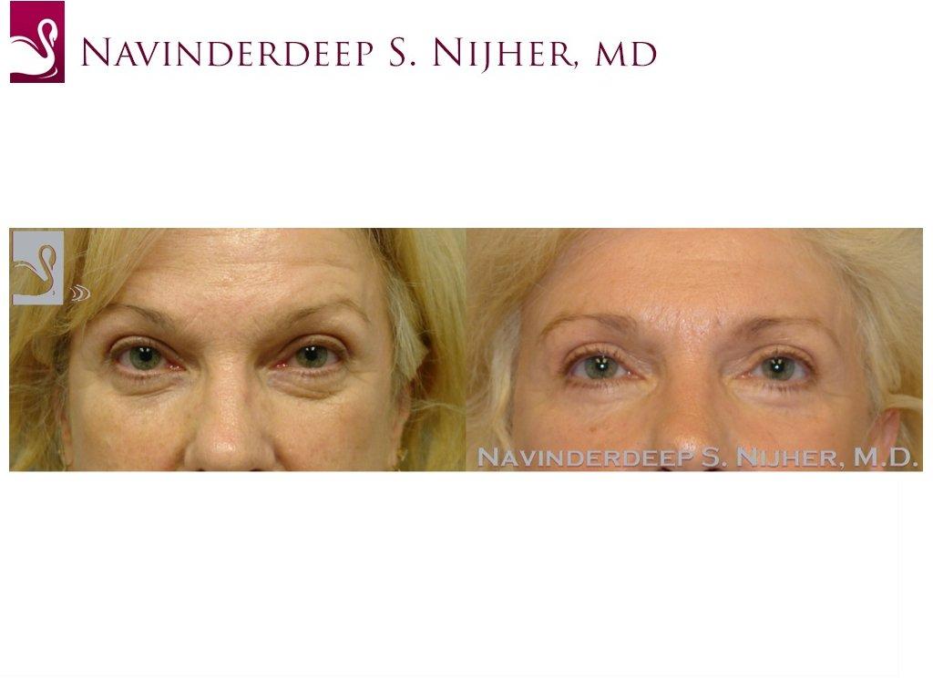 Eyelid Surgery Case #37215 (Image 1)