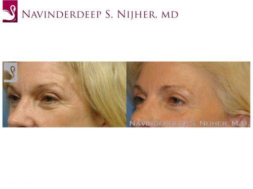 Eyelid Surgery Case #37215 (Image 2)