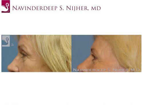 Eyelid Surgery Case #37215 (Image 3)