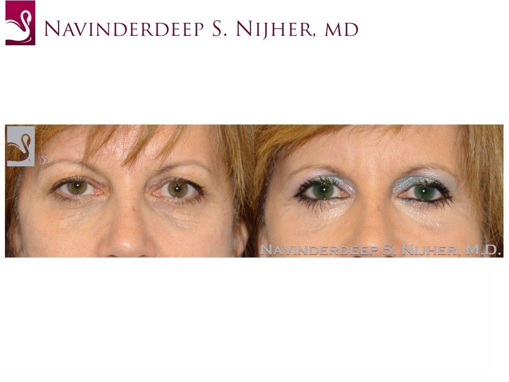 Eyelid Surgery Case #26493 (Image 1)