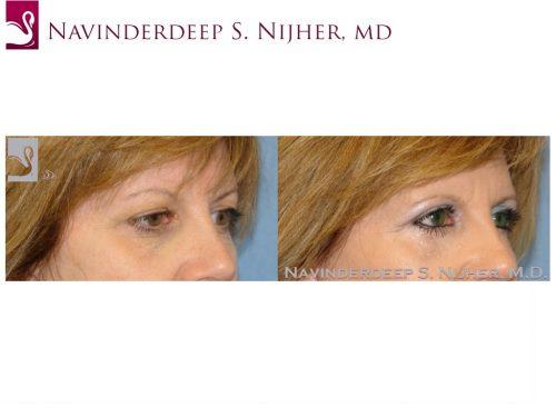 Eyelid Surgery Case #26493 (Image 2)