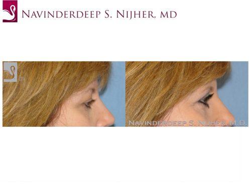 Eyelid Surgery Case #26493 (Image 3)