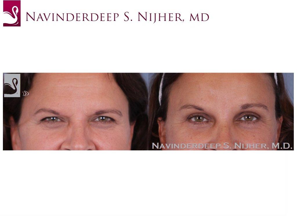Eyelid Surgery Case #49794 (Image 1)