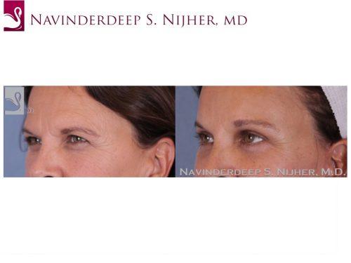 Eyelid Surgery Case #49794 (Image 2)