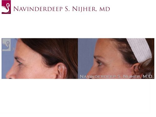 Eyelid Surgery Case #49794 (Image 3)
