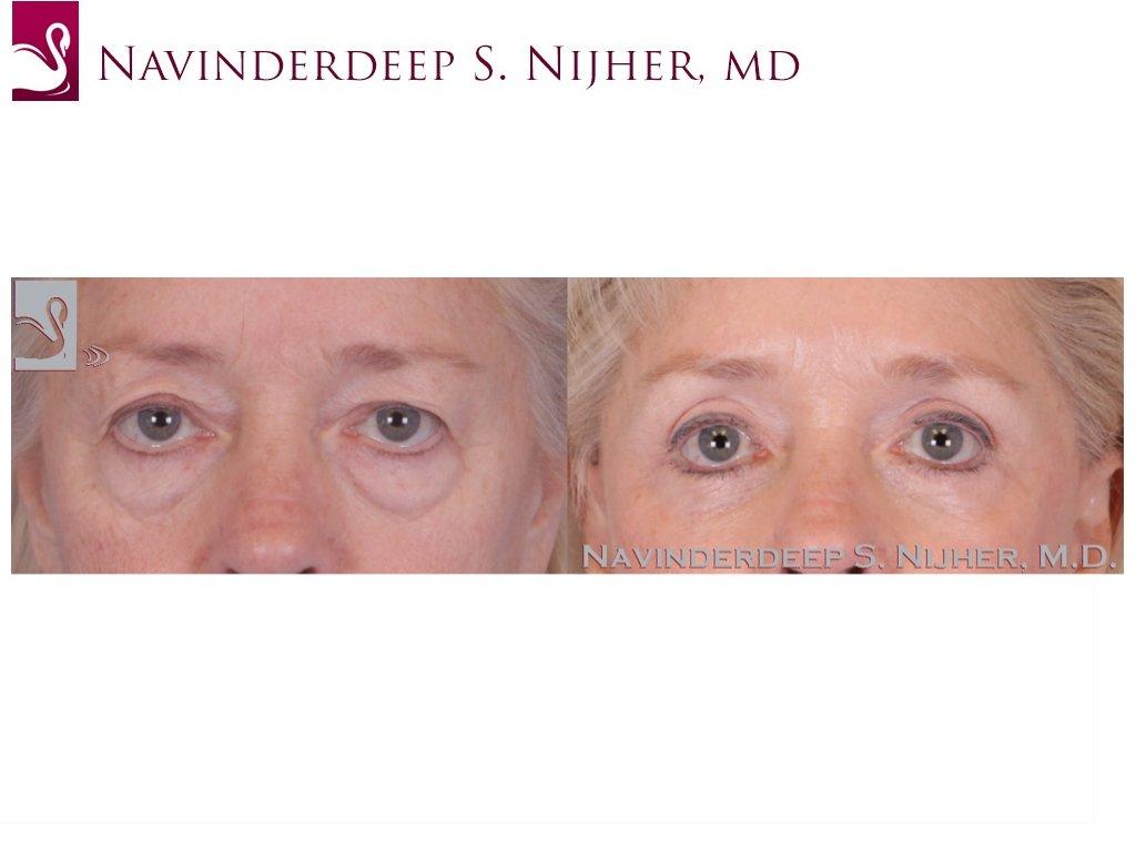 Eyelid Surgery Case #49888 (Image 1)