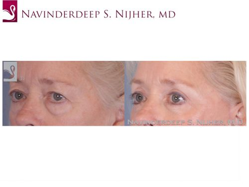 Eyelid Surgery Case #49888 (Image 2)