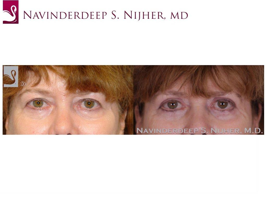 Eyelid Surgery Case #47009 (Image 1)