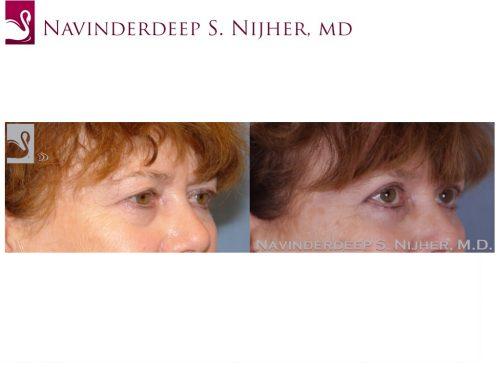 Eyelid Surgery Case #47009 (Image 2)