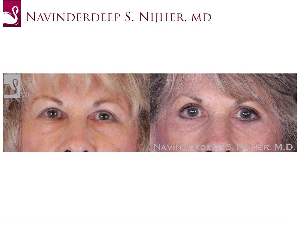 Eyelid Surgery Case #36941 (Image 1)