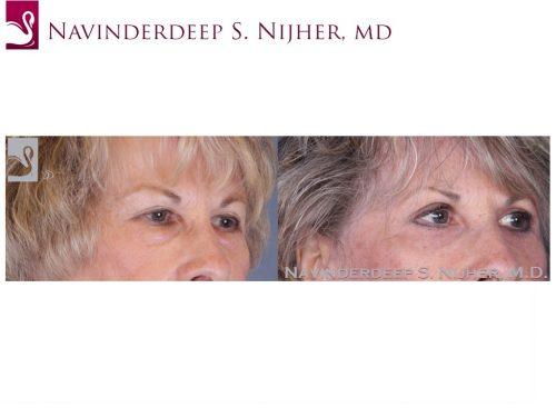 Eyelid Surgery Case #36941 (Image 2)
