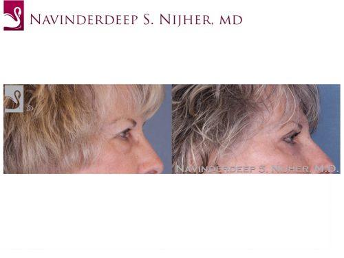 Eyelid Surgery Case #36941 (Image 3)
