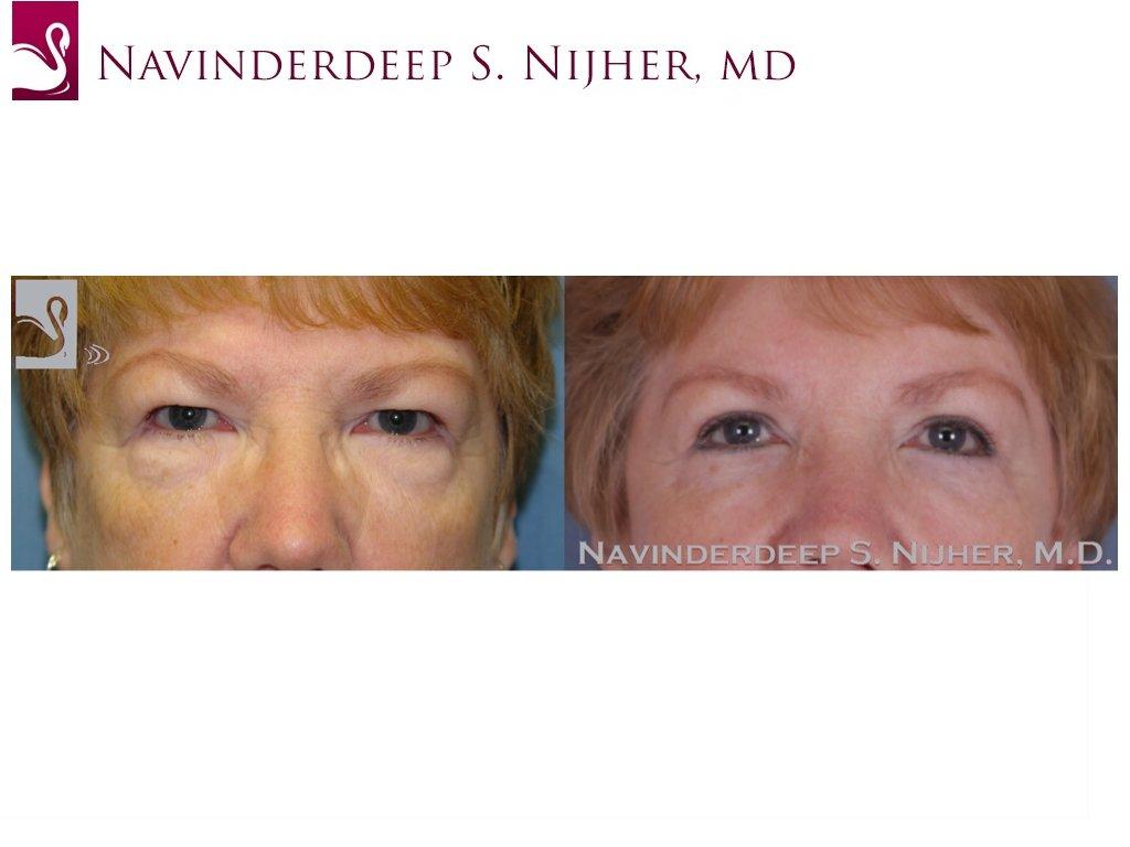Eyelid Surgery Case #47407 (Image 1)
