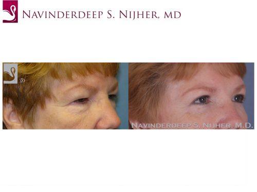 Eyelid Surgery Case #47407 (Image 2)