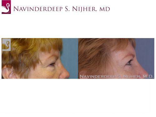 Eyelid Surgery Case #47407 (Image 3)