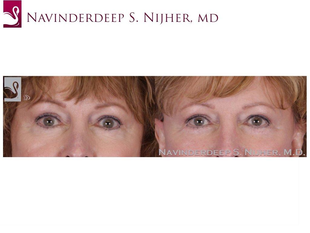 Eyelid Surgery Case #28990 (Image 1)