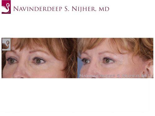 Eyelid Surgery Case #28990 (Image 2)