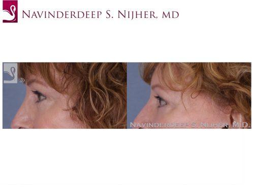 Eyelid Surgery Case #28990 (Image 3)