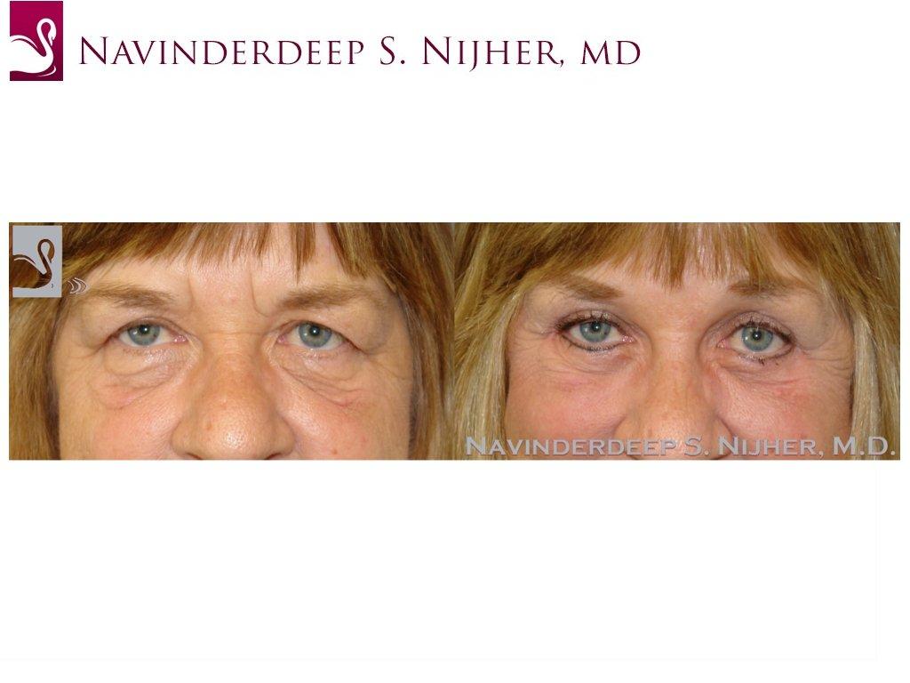 Eyelid Surgery Case #39550 (Image 1)