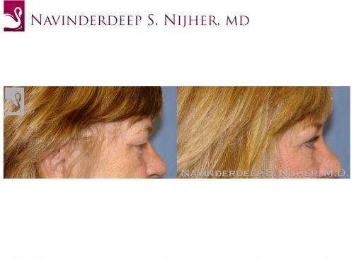 Eyelid Surgery Case #39550 (Image 3)