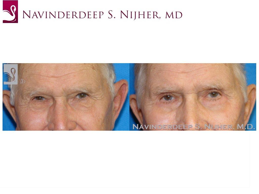 Eyelid Surgery Case #44510 (Image 1)
