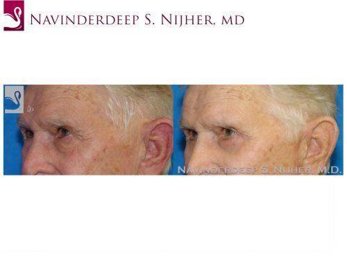 Eyelid Surgery Case #44510 (Image 2)