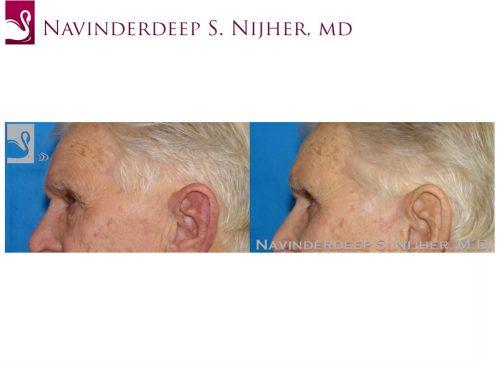 Eyelid Surgery Case #44510 (Image 3)