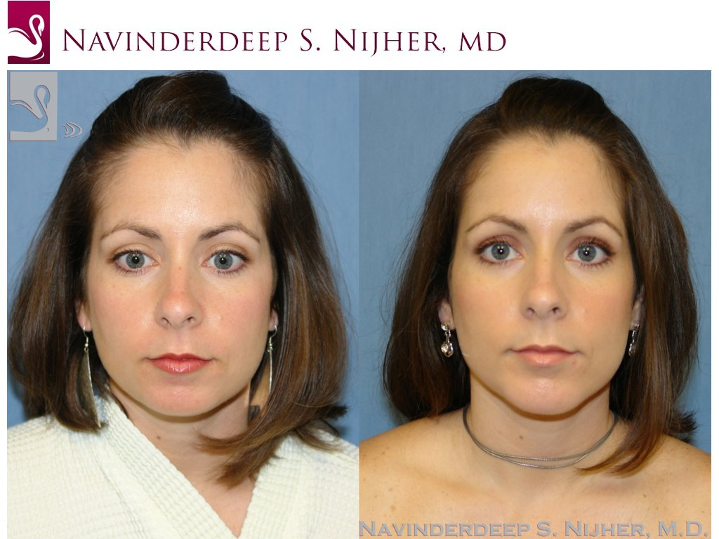 Facial Implants Case #42871 (Image 1)