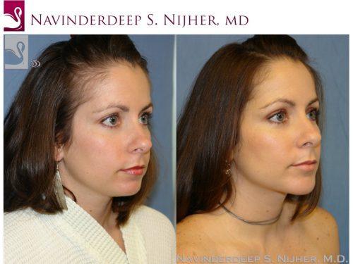 Facial Implants Case #42871 (Image 2)