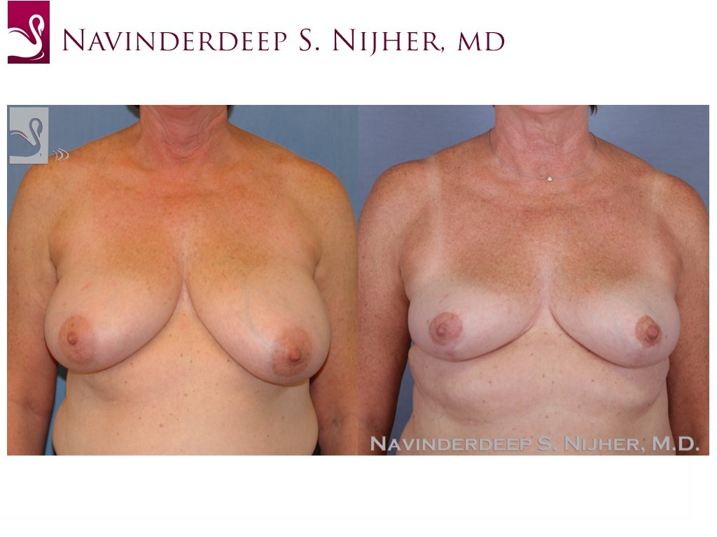 Female Breast Reduction Case #43913 (Image 1)