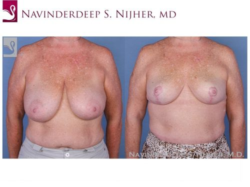 Female Breast Reduction Case #19467 (Image 1)
