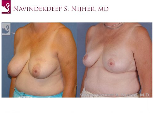 Breast Reconstruction Case #47753 (Image 2)