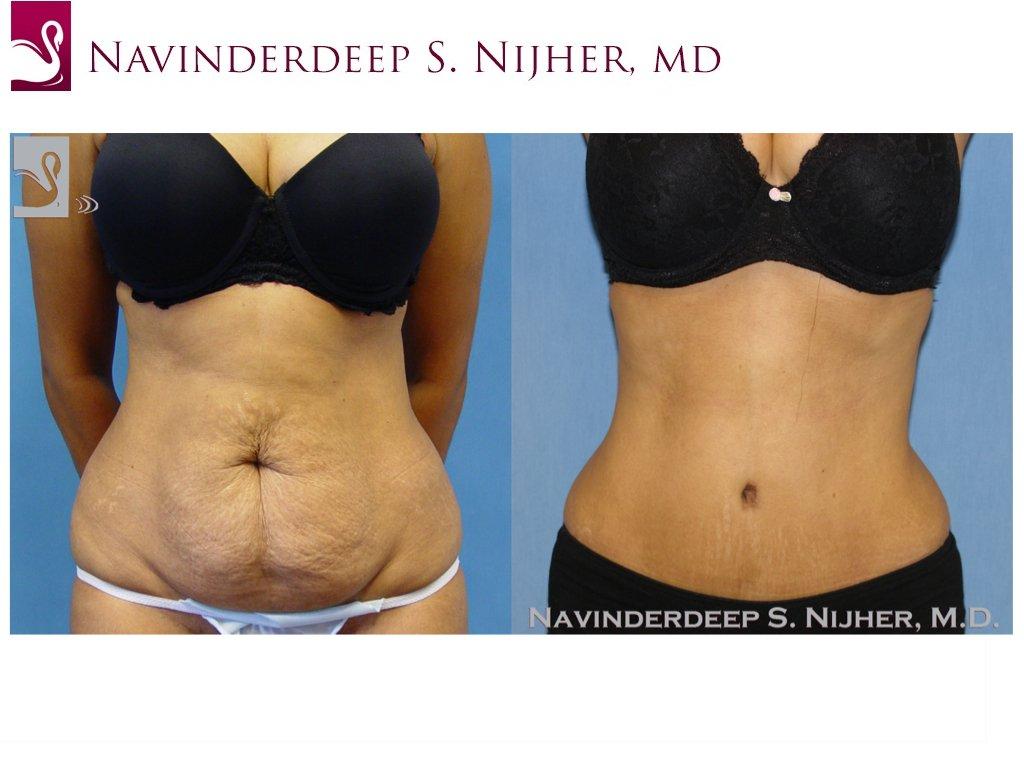 Abdominoplasty (Tummy Tuck) Case #36457 (Image 1)