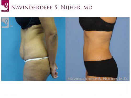 Abdominoplasty (Tummy Tuck) Case #36457 (Image 3)