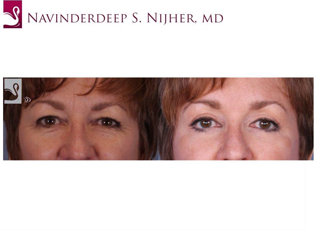 Eyelid Surgery Case #52348 (Image 1)