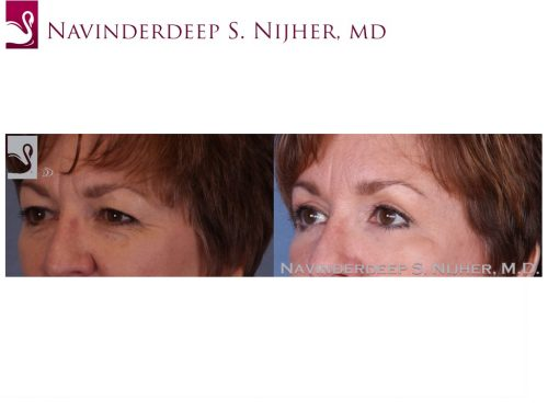 Eyelid Surgery Case #52348 (Image 2)