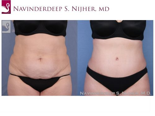 Abdominoplasty (Tummy Tuck) Case #52373 (Image 1)