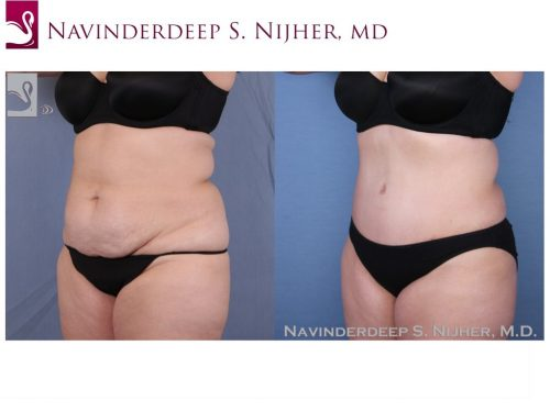 Abdominoplasty (Tummy Tuck) Case #52373 (Image 2)