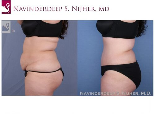 Abdominoplasty (Tummy Tuck) Case #52373 (Image 3)