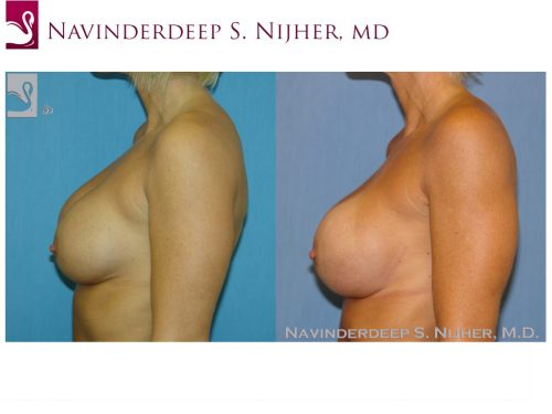 Breast Revisions Case #38931 (Image 3)