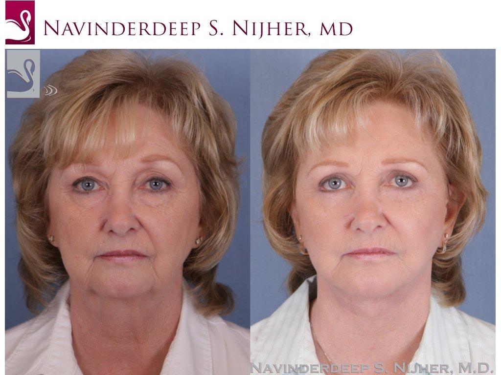 Facial Implants Case #985 (Image 1)