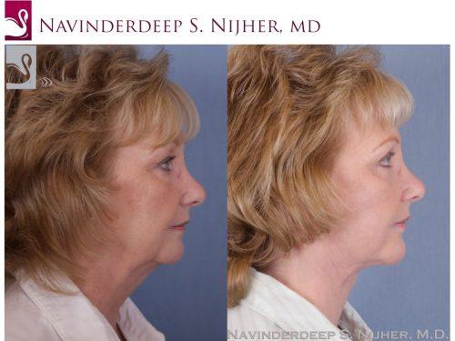 Facial Implants Case #985 (Image 3)