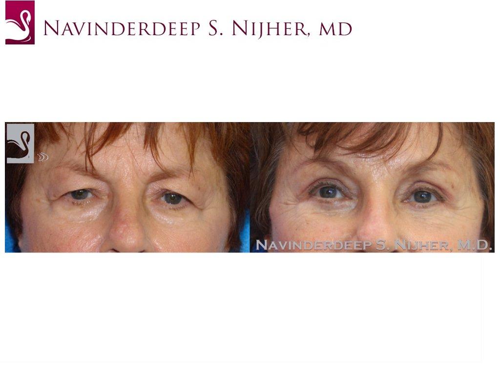 Eyelid Surgery Case #43196 (Image 1)