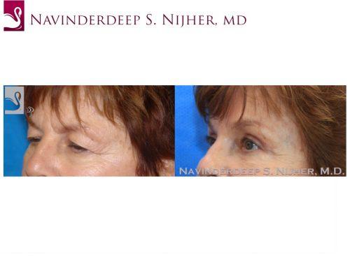 Eyelid Surgery Case #43196 (Image 2)